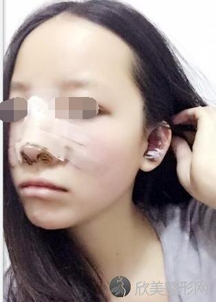 隆鼻术后3天