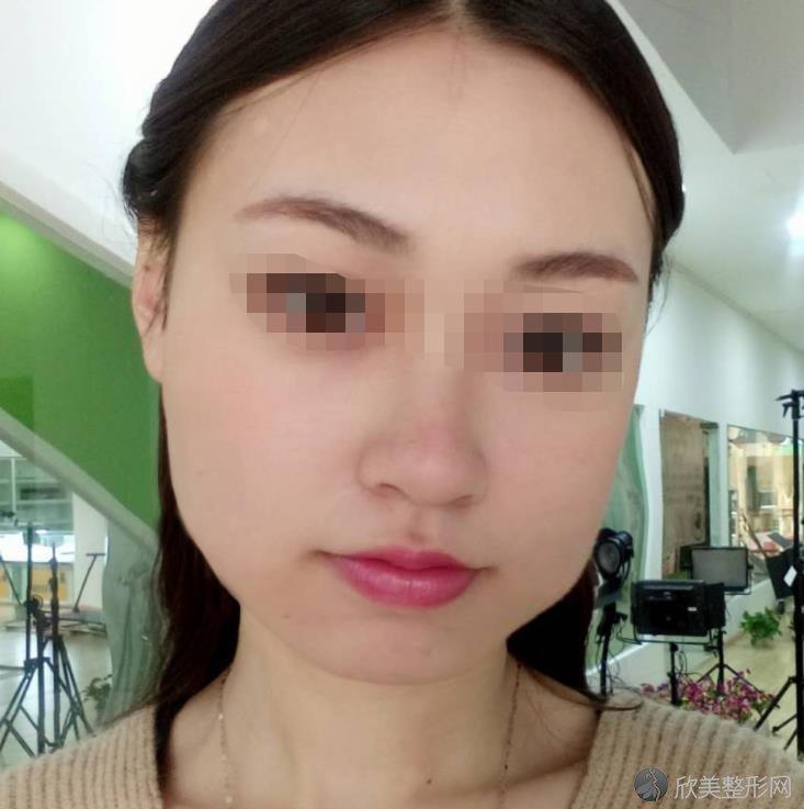 武汉亚韩整形美容医院赵贵庆医生做脸部整形之前