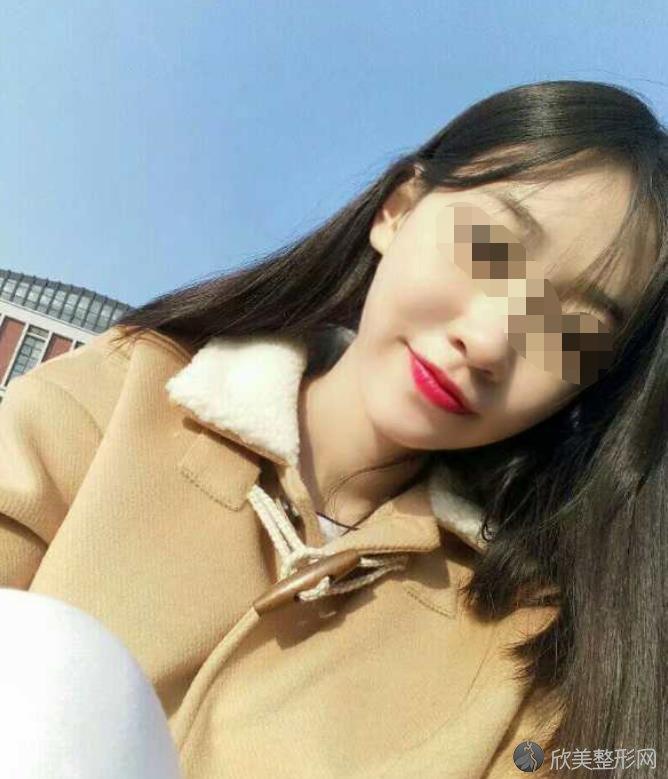 武汉亚韩整形美容医院赵贵庆医生做脸部整形之后