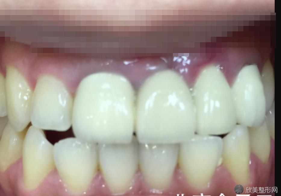 武汉清华阳光口腔医院做牙齿美白之后