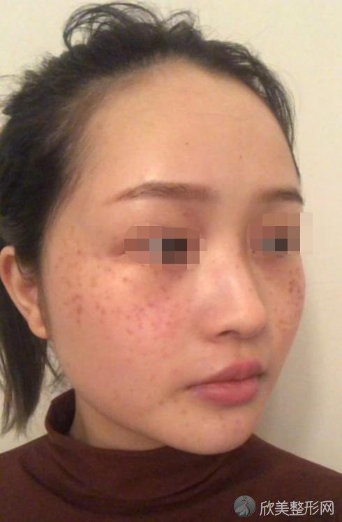 南京新街口康美医疗美容医院祛斑之后