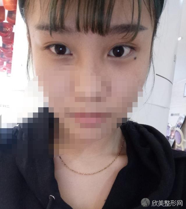 南京美贝尔医疗美容医院做双眼皮之前
