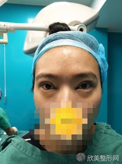 南京美斯兰医疗美容医院做双眼皮之后