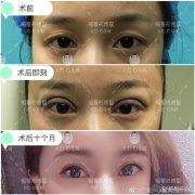 双眼皮修复白永辉和刘志刚哪个手艺高