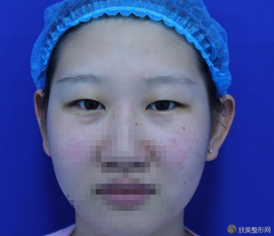 南京五洲医院整形美容外科双眼皮之前
