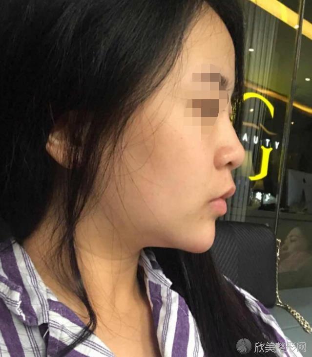 南京容易医疗美容医院做隆鼻之前