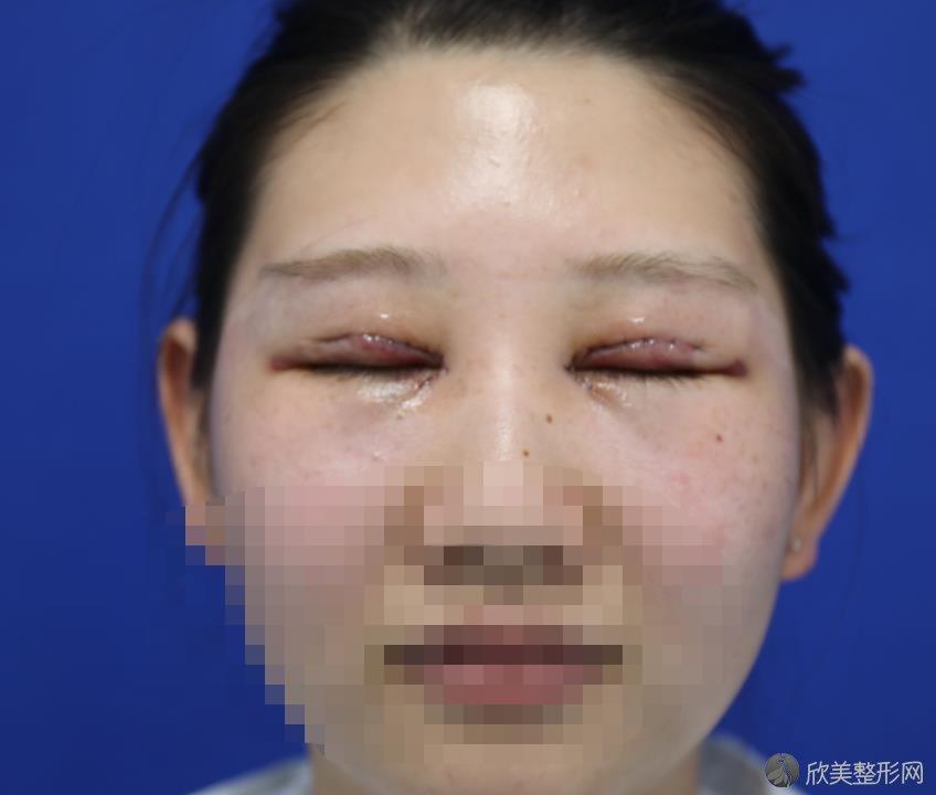 南京五洲医院整形美容外科双眼皮之后