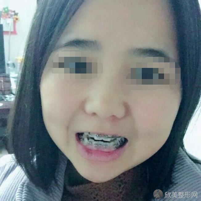 广州中家医家庭医生口腔医院华志熙做牙齿矫正之后