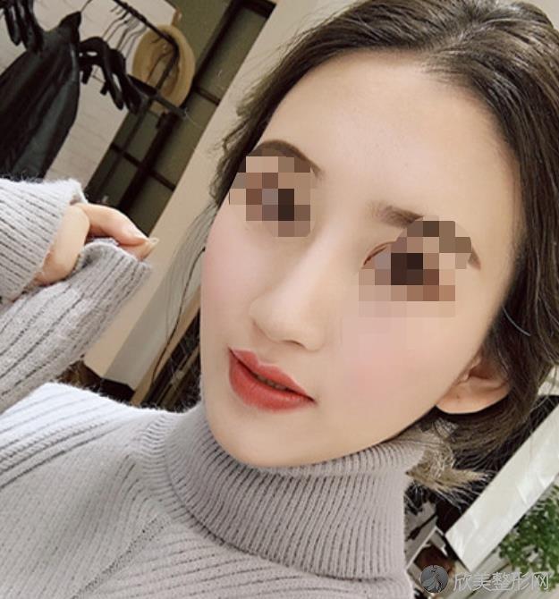 广州曙光医学美容医院做隆鼻之后