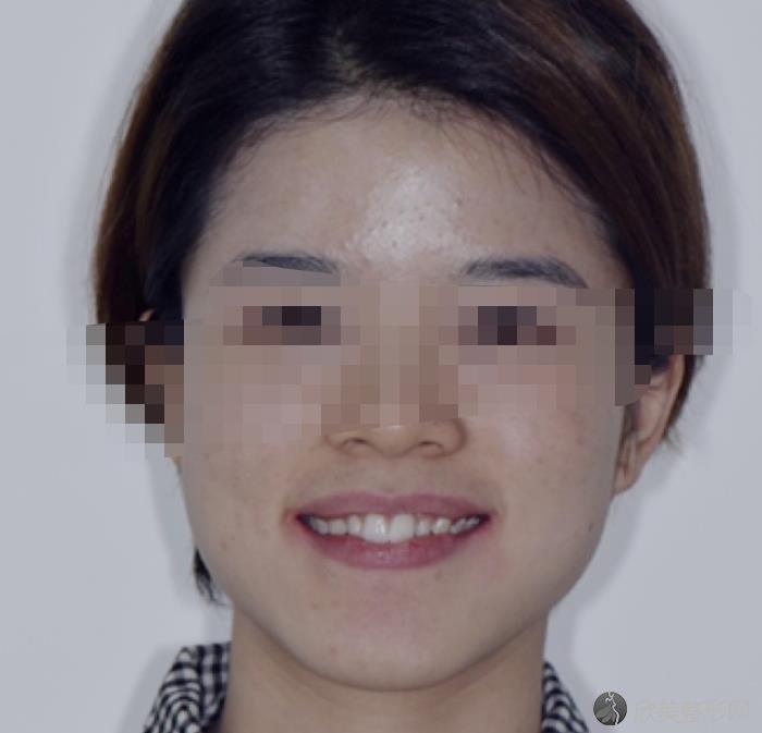 中山大学附属口腔医院张志光医生做牙齿矫正之前