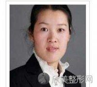 南京友谊李丙燕医生做祛斑技术怎么样?可靠吗?价格贵不贵?