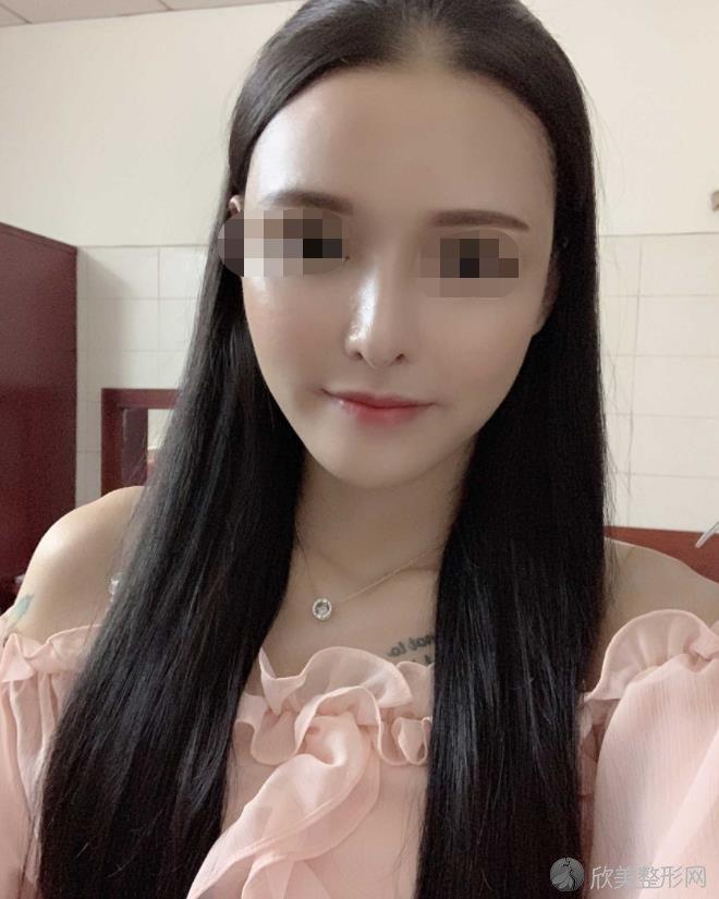 南京华美整形美容医院裴旭芳医生做面部填充之后