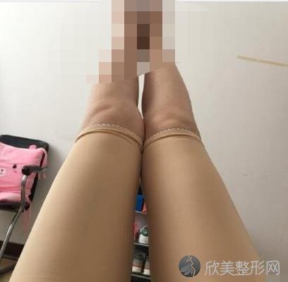 南京华美整形美容医院朱善智医生做大腿吸脂之后