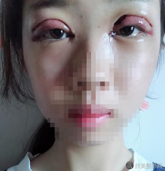 杭州格莱美吴红丽做双眼皮手术恢复期