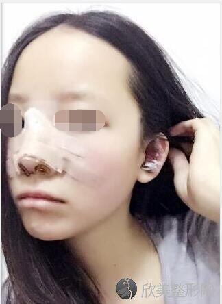 隆鼻术后2天