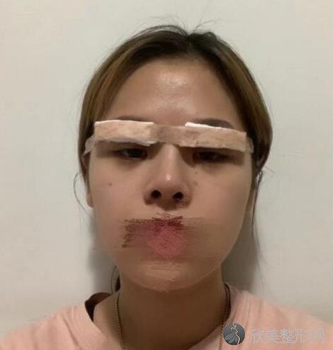 杭州珈禾徐丹医生双眼皮之后