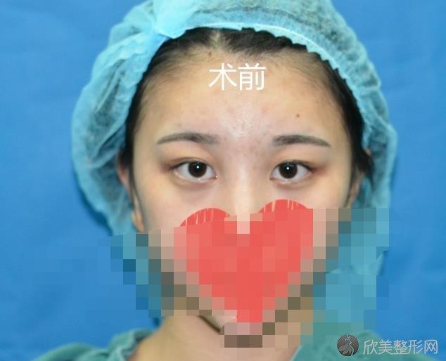 杭州美莱医疗美容医院栗勇医生双眼皮之前