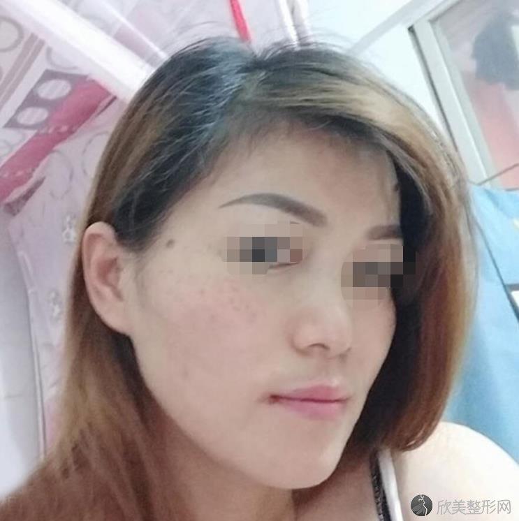 杭州美莱医疗美容医院王艳医生激光祛斑之后