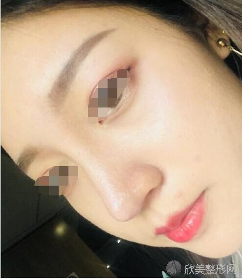 面部填充术后30天