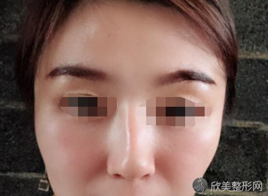 提眉手术术前