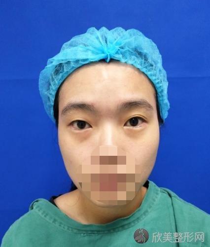杭州时光整形美容医院胡斌医生全脸打造之前