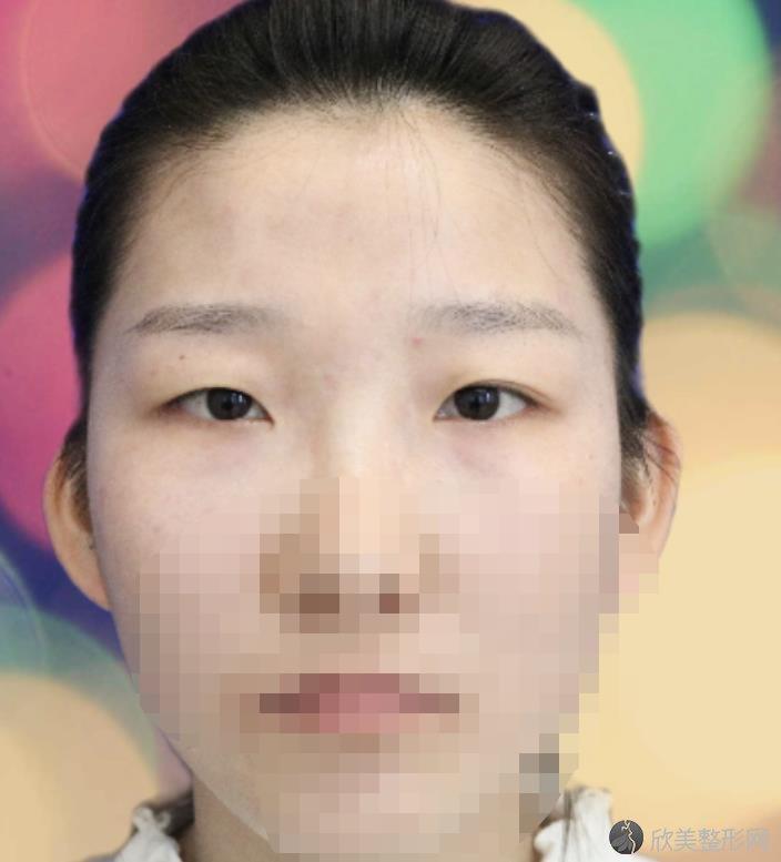 杭州时光整形美容医院范眉清双眼皮之前