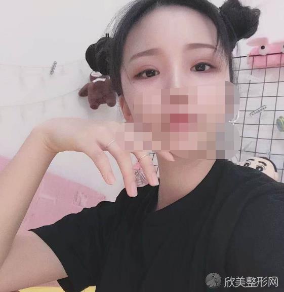 杭州时光整形美容医院范眉清割双眼皮之后