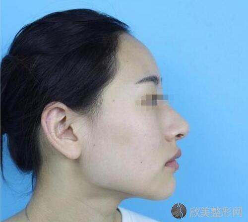 下颌角术前