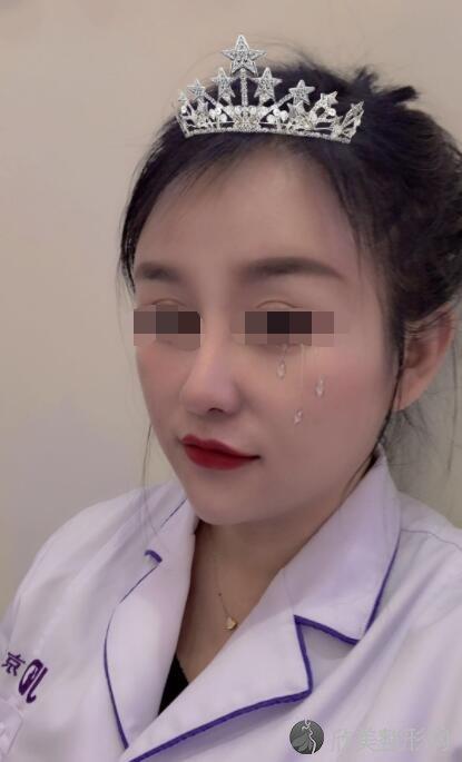 隆鼻修复术后30天