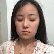 八大处轮廓手术失败修复亲身过程分享~内附术后恢复图