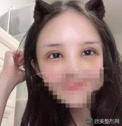 贾亮亮医生眼综合案例分享~来看看做双眼皮手术照片吧