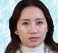 深圳李信峰鼻修复案例分享!来看真实的对比照吧