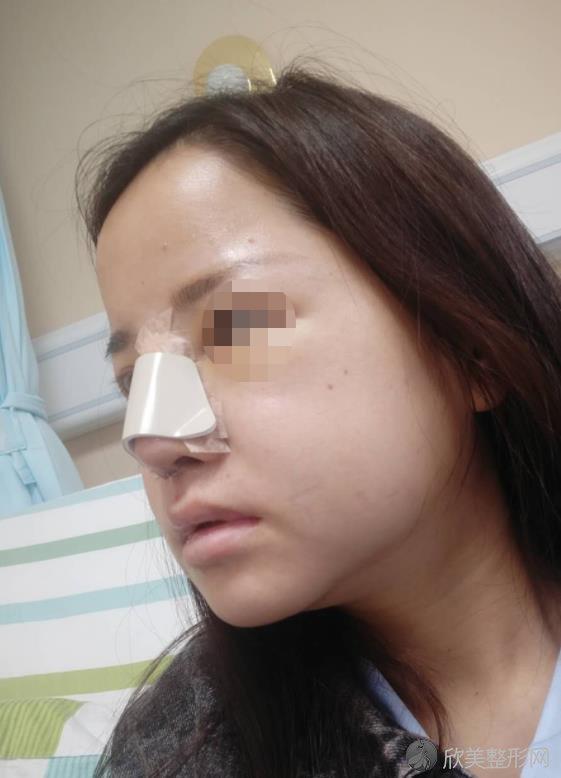 协和黄渭清鼻矫正的技术好不好?来看真实的案例就知道了
