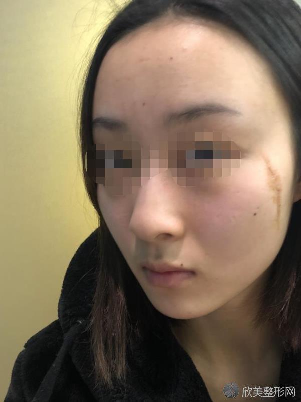 张子春治疗疤痕的技术可不可靠?来看真实案例吧