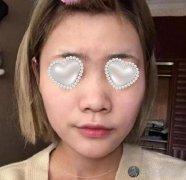 北京八大处整形美容医院王佳琦医生做隆鼻案例分享~术后恢复图