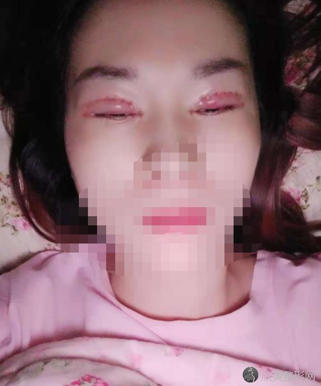 华西肖海涛做双眼皮手术全过程介绍~来看案例图