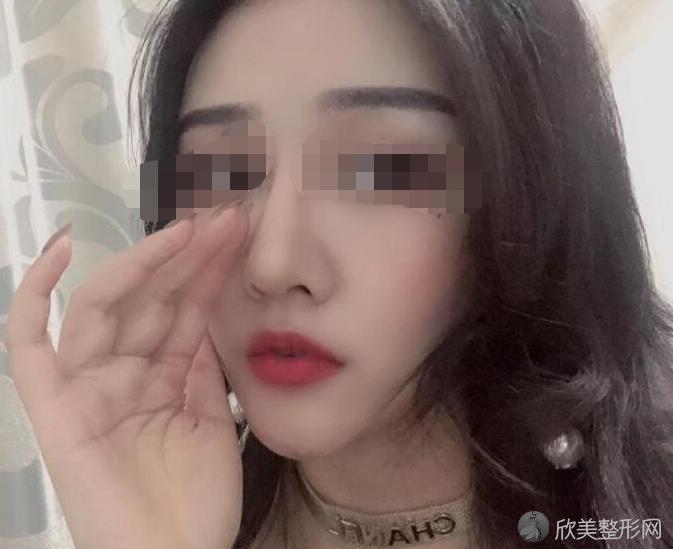 上海韩国栋隆鼻技术如何?真人手术前后对比图