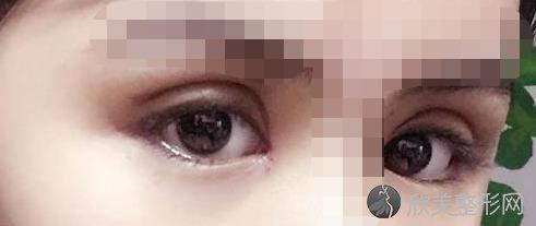 上海华美做双眼皮那位医生的技术比较好?来看真人案例图