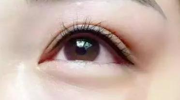 美瞳线一般多少钱