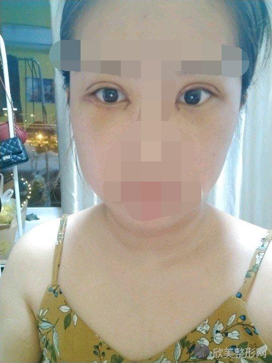 沈阳张莹莹案例双眼皮技术怎么样?口碑好吗?附真实案例图