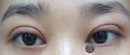 李广帅做双眼皮怎么样你了解吗?你心动了吗?附真实案例图