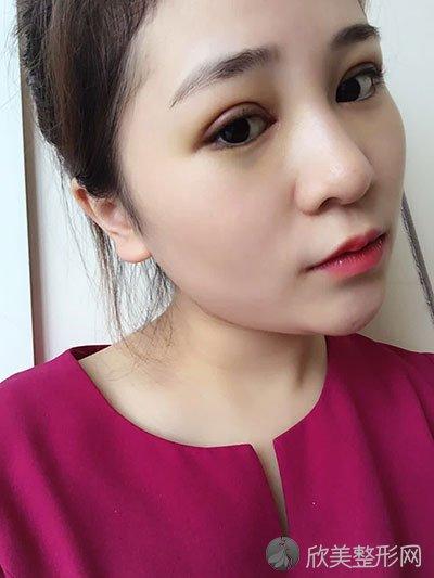 上海光博士李彬做双眼皮怎么样?李彬简介_双眼皮案例分享