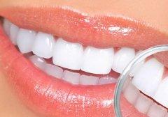 【氟斑牙图片】氟斑牙是什么样子的图片