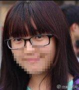 李天石双眼皮修复案例分享~手术前后差别大吗