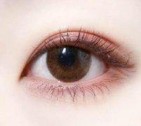 抽脂去眼袋的效果怎么样,能维持几年?