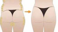 臀部吸脂一共有多少个部位