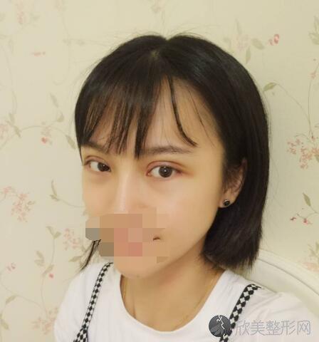 郑州艺德雅整形医院院长刘学宝修复双眼皮怎么样?