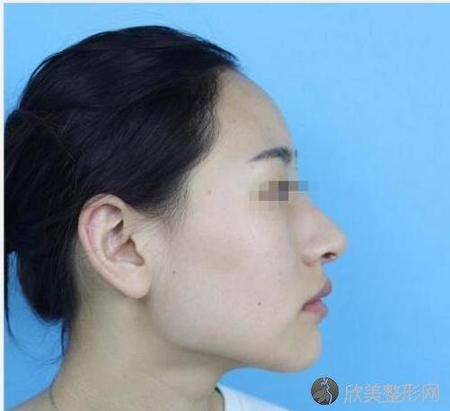 中国中医科学院刘剑锋做下颌角怎么样?刘剑锋案例_价格分享来了~