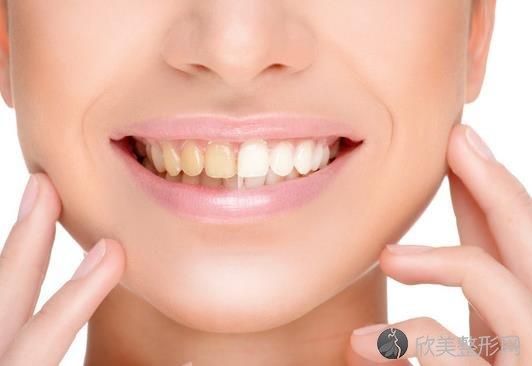 章丘整牙哪里好你知道吗?快来拯救你的牙齿吧!