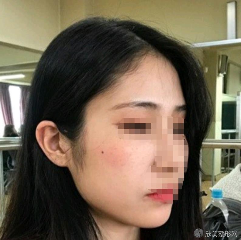 俞良钢怎么样?来看脸型改造手术后的效果吧~